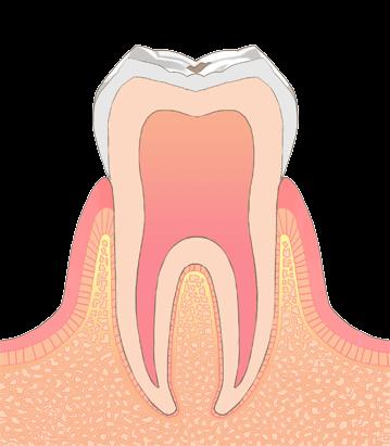 むし歯の進行段階その1:C0(シーオー)