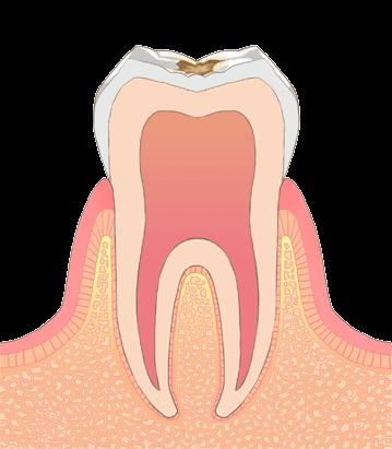 むし歯の進行段階その2:C1(シーワン)