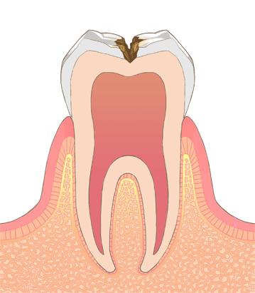 むし歯の進行段階その3:C2