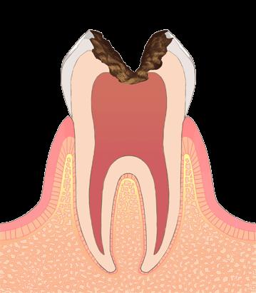 むし歯の進行段階その4:C3