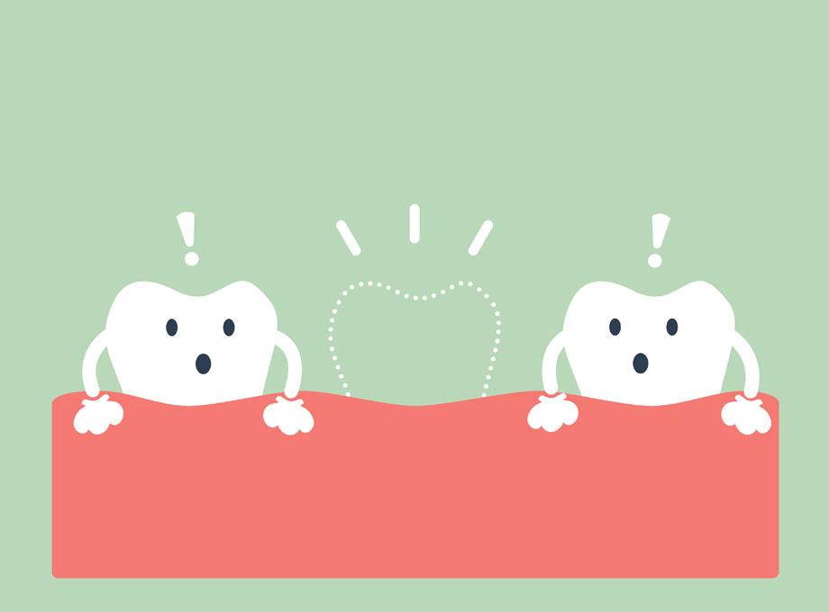 歯が失われた状態を放置するとどうなる?