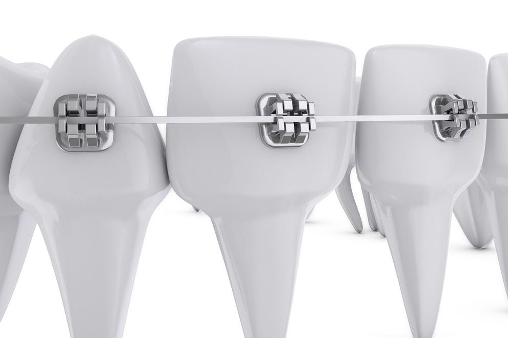 矯正歯科とはそもそも何か
