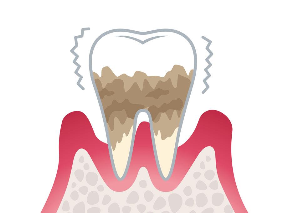 歯周病が妊娠に与える悪影響
