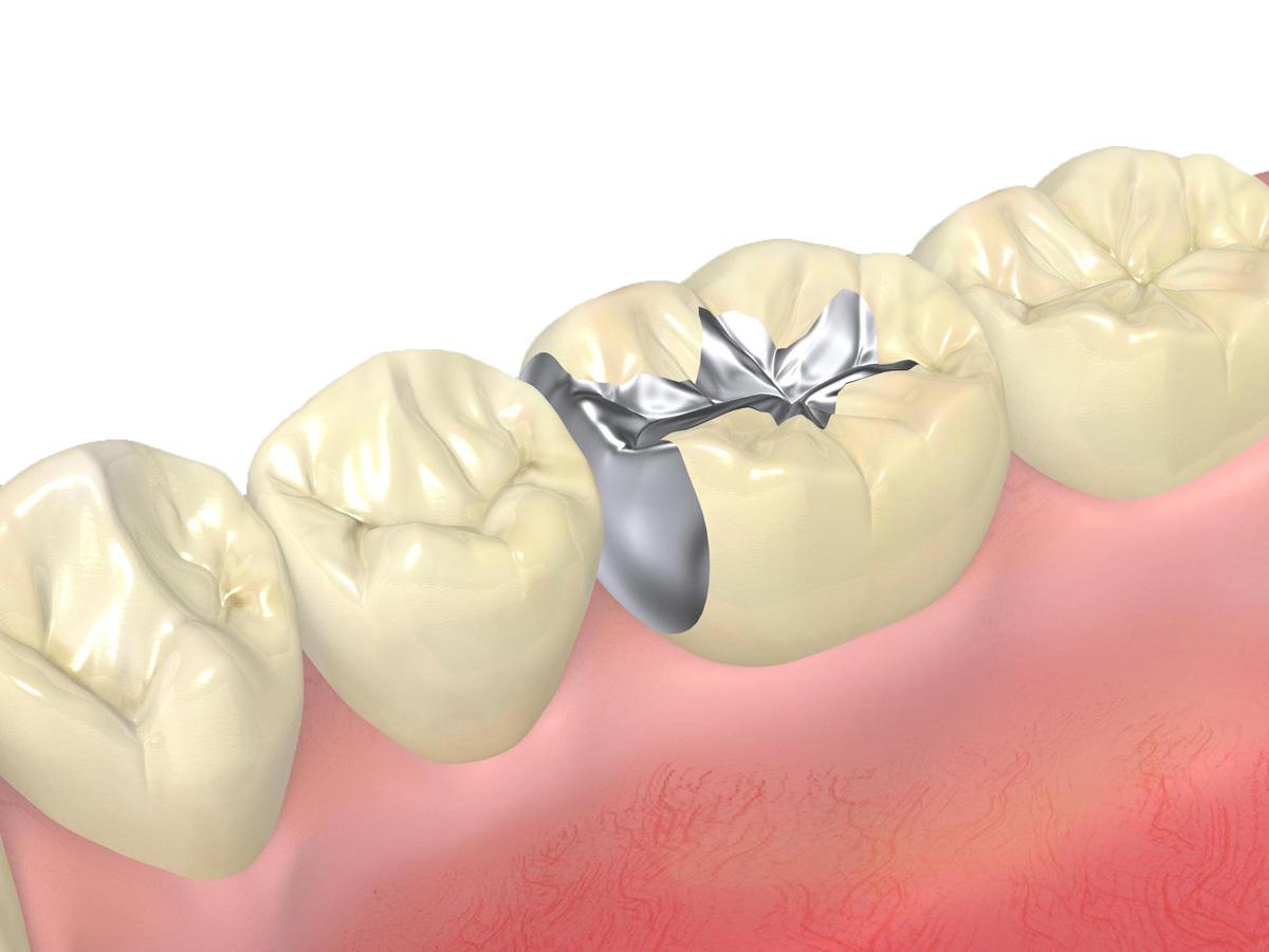 銀歯の光沢が気になる